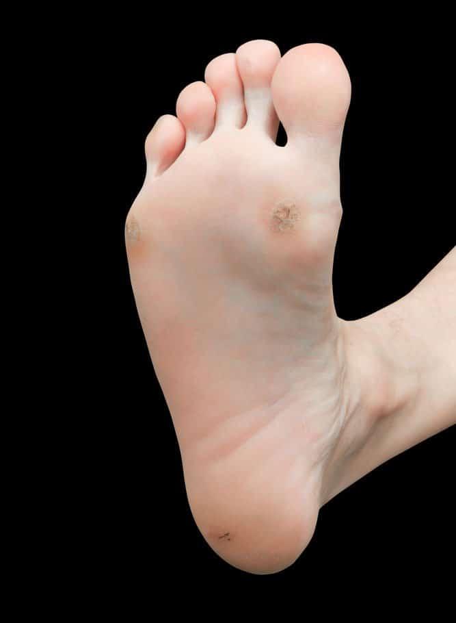 Zuljevi-Zulj bez jezgra, tvrd zulj na stopalu