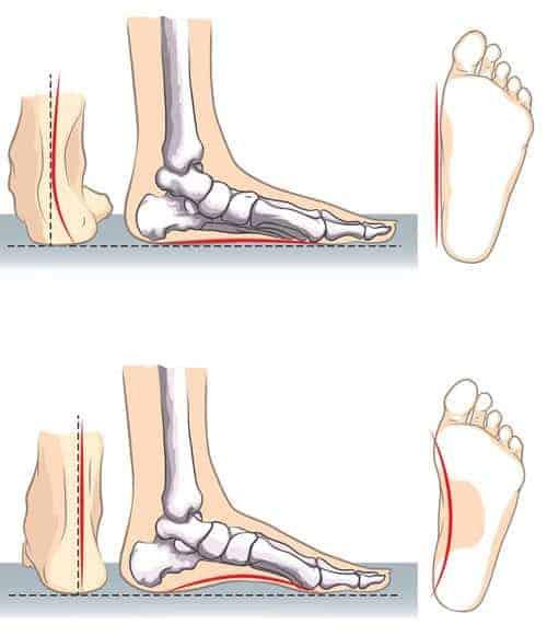 Ravna stopala i ravni tabani