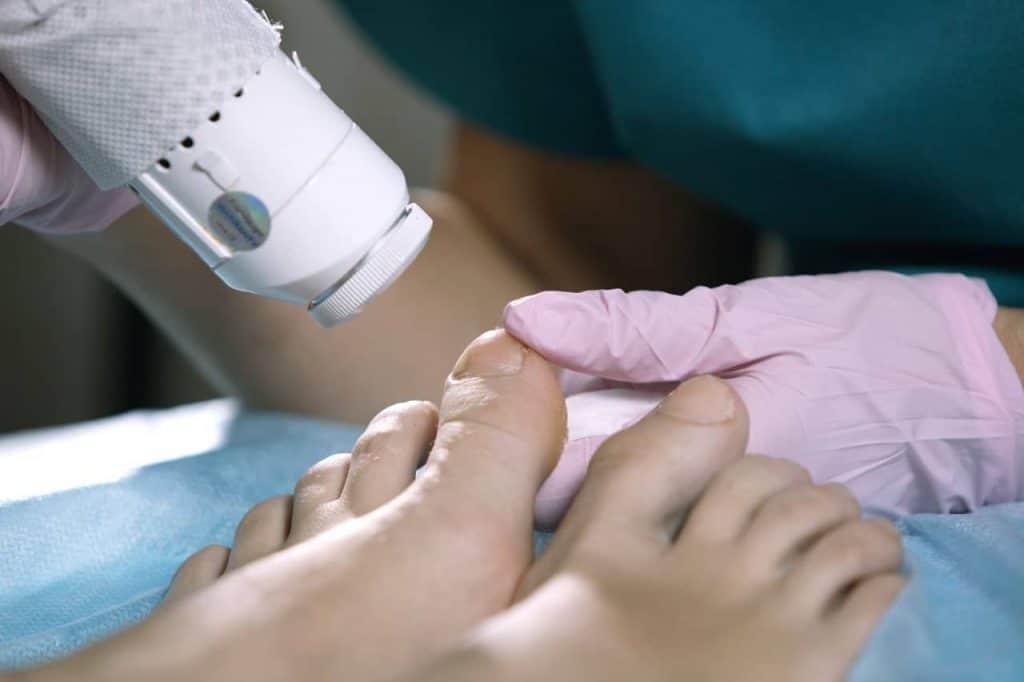 Gljivice na noktima (onihomikoza)