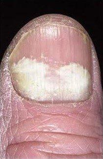 PSO - gljivice na noktima