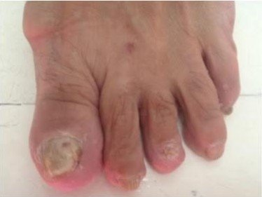 TDO gljivice na noktima